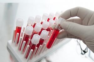 Гемоглобин при беременности: если повышен