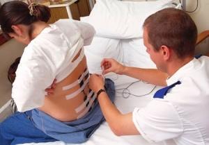 Эпидуральная анестезия при родах: показания и противопоказания