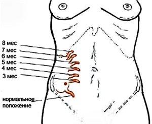 Причины заболевания у беременных