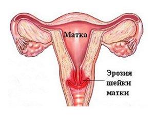 Кольпоскопия во время беременности: показания