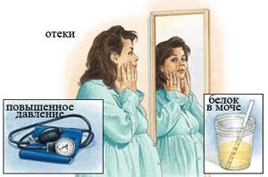 Симптомы гестоза при беременности