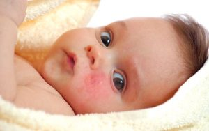 Диатез у новорожденных: причины