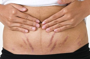 Растяжки после родов - нормальное явление