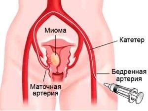 Способы лечения миомы матки