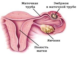 Внематочная беременность или киста: как не спутать