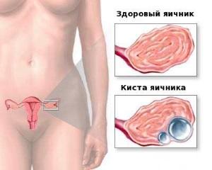 Киста яичника: симптомы заболевания