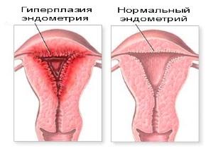 Лечение и профилактика гиперплазии эндометрия