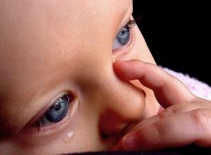 Диагностика дакриоцистита у новорожденных