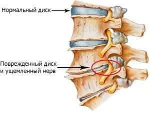 Что такое остеохондроз, его виды