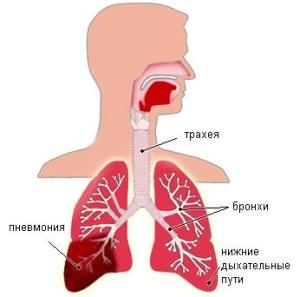 Виды пневмонии при беременности