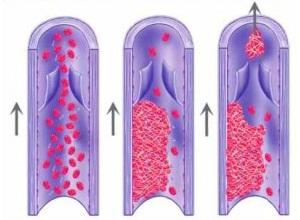 Тромбофилия при беременности: формы и виды