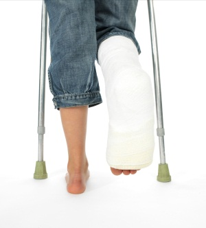 Что такое перелом кости?