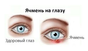 Симптомы и признаки ячменя