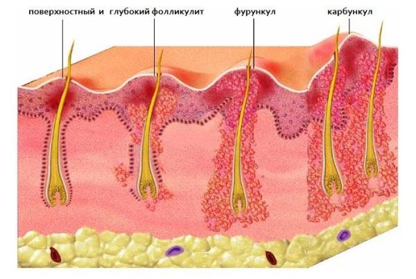 Фурункул при беременности: виды и стадии заболевания