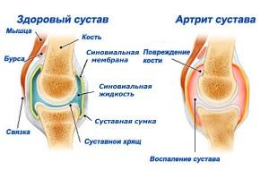 Артрит при беременности: формы, стадии, виды заболевания