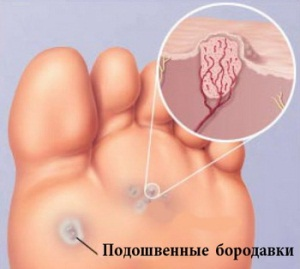 Профилактика появления бородавок во время беременности