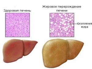 Что такое гепатоз - общие сведения о заболевании