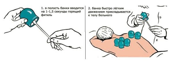 Как использовать медицинские банки при беременности
