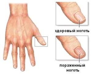 Грибок ногтей при беременности: виды, стадии, формы