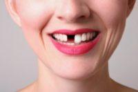 Удаление зубов при беременности: что надо знать?