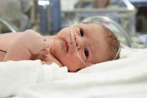 Гипоксия у новорожденных