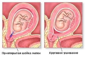 Диагностика и лечение истмико-цервикальной недостаточности во время беременности
