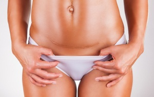 Все, что необходимо знать женщине об операции кесарева сечения