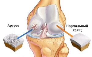 Изображение - Артроз тазобедренного сустава беременность artrozkolena