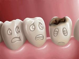 Какой кариес не надо лечить — Зубы